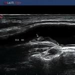 placca vascolare
