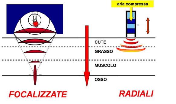 differenza onde d'urto focalizzate e radiali