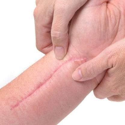 Trattamento laser cicatrici e cheloidi